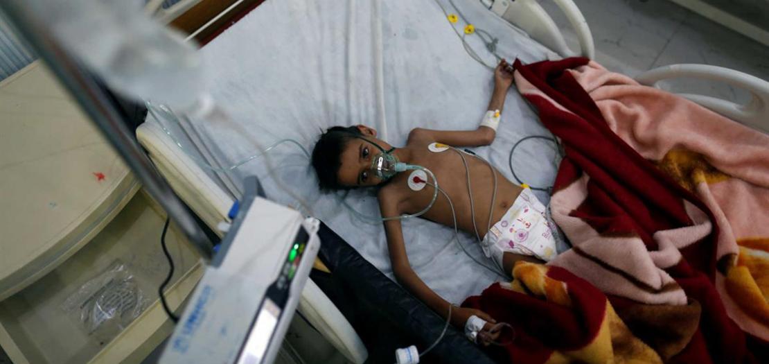 طفل يمني في أحد مستشفيات العاصمة اليمنية صنعاء (أرشيف رويترز)